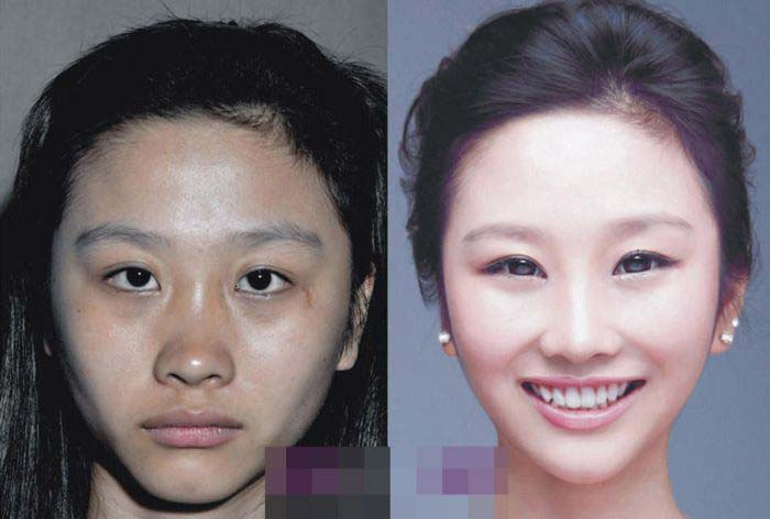 Подтверждение личности после пластических операций