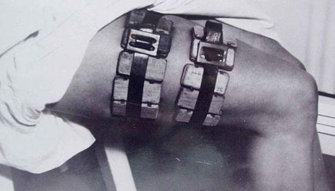Ужасные врачебные инструменты из прошлого