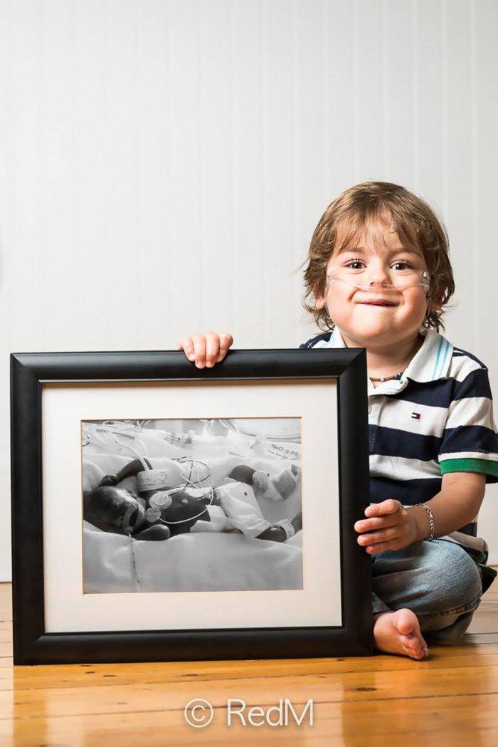 Недоношенные младенцы тогда и сейчас на фотографиях Реда Мето