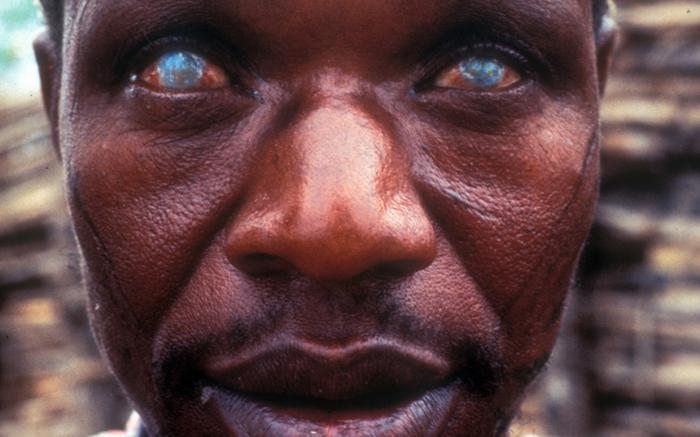 10 самых страшных паразитов, которые могут жить в человеческом теле
