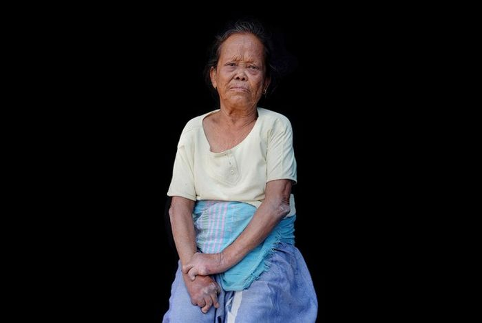 Жители колонии прокаженных в Непале