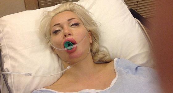 Шведка сделала 19 пластических операций, чтобы стать похожей на героиню мультфильма