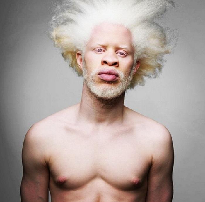 люди альбиносы фото красивые