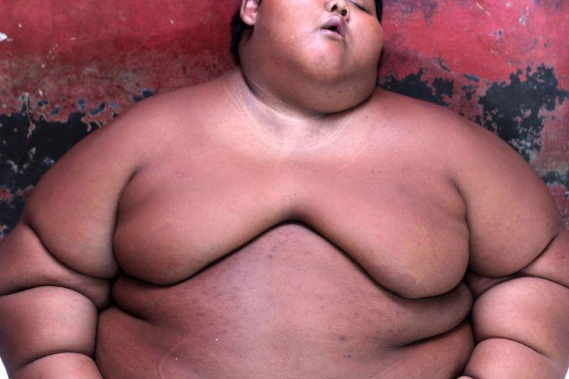 Самый толстый мальчик в мире