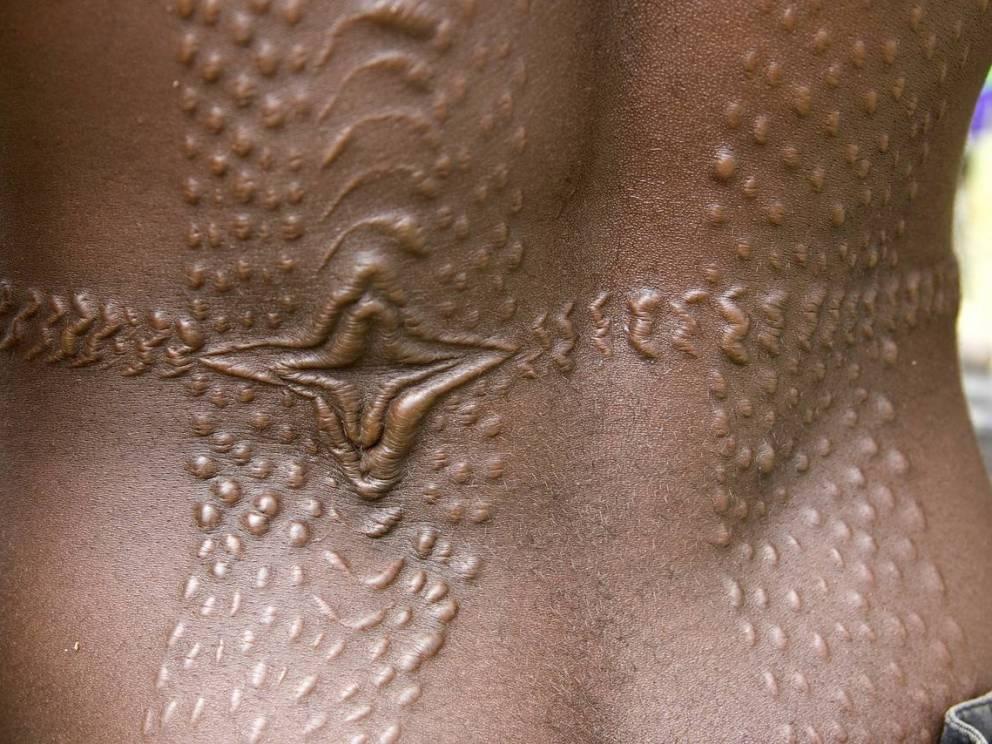 Бодимодификация: пытка красотой