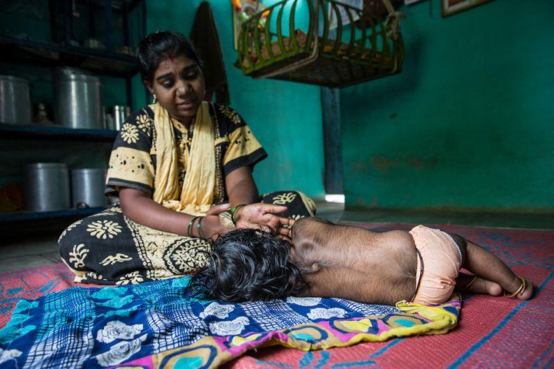 В индийской семье оборотней появился еще один волосатик
