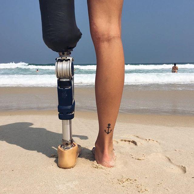 Девушка лишилась ноги, но это не помешало ей стать моделью
