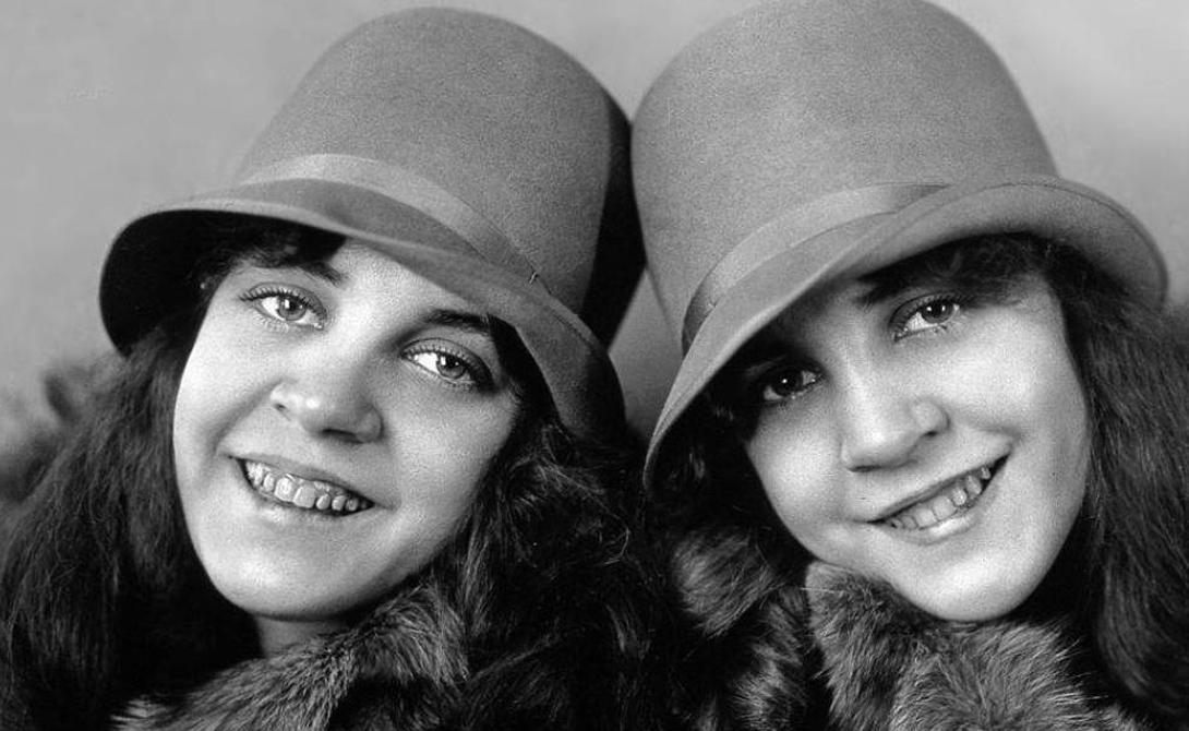 10 удивительных сиамских близнецов