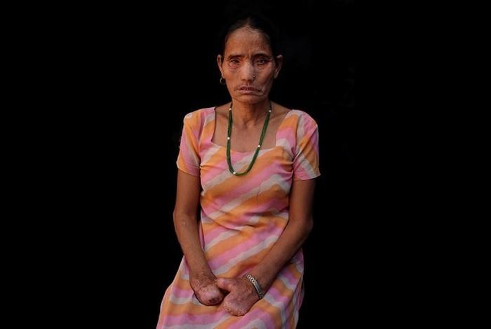 Деревня прокаженных в 10 км от столицы Непала