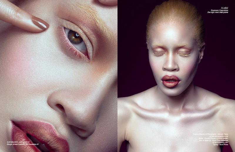Модели с дефектами внешности: уродство или изюминка