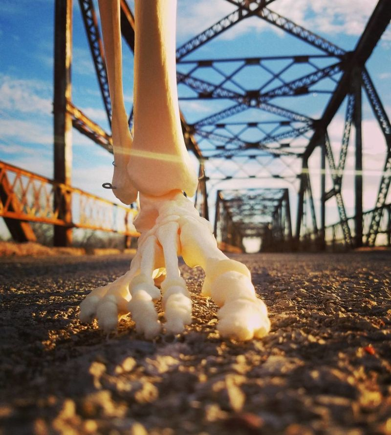 Девушка завела Инстаграм-аккаунт для своей ампутированной ноги