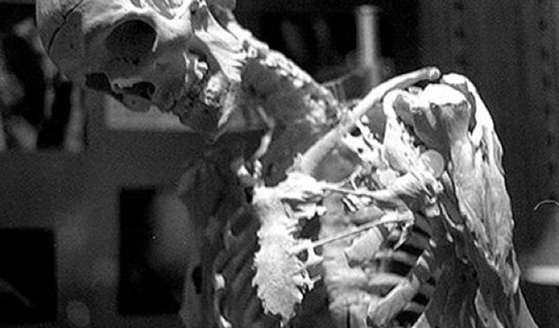 10 страшных и удивительных генетических аномалий