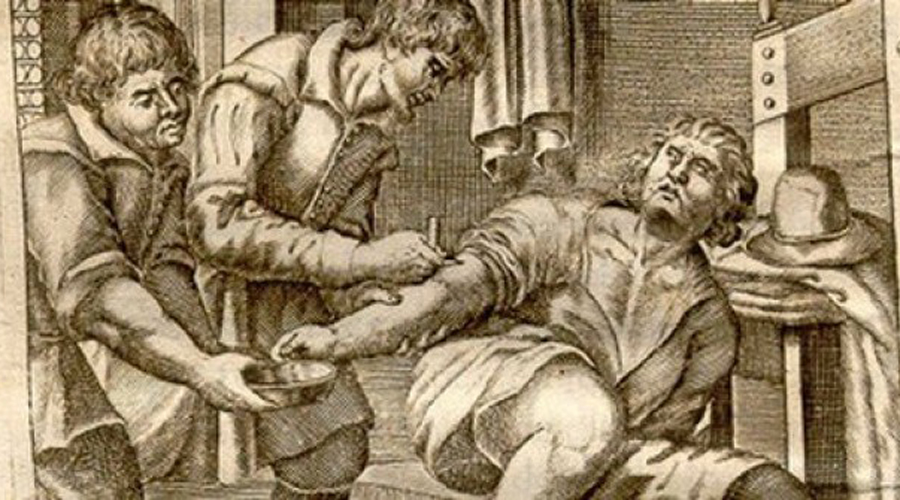 Безумная медицина прошлого