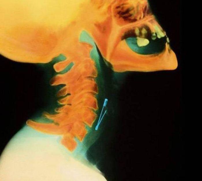 Предметы внутри тел на рентгеновских снимках