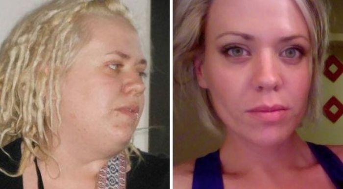 Как потеря веса влияет на лицо
