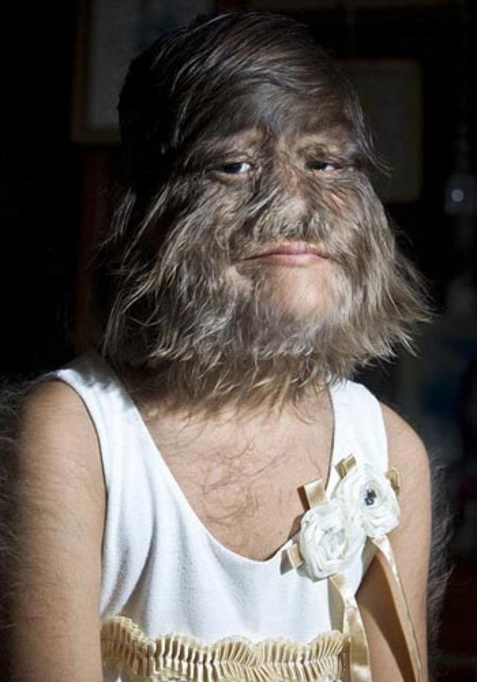 Самая волосатая в мире девушка сбрила волосы и вышла замуж