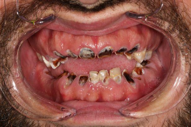 Во что превращают зубы 6 литров газировки ежедневно