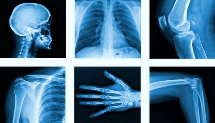 Исторические изобретения, которые кардинально изменили медицинскую науку