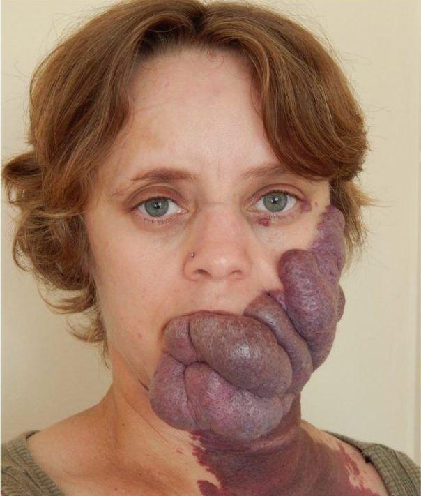 Женщина всю жизнь страдает от огромной родинки на лице