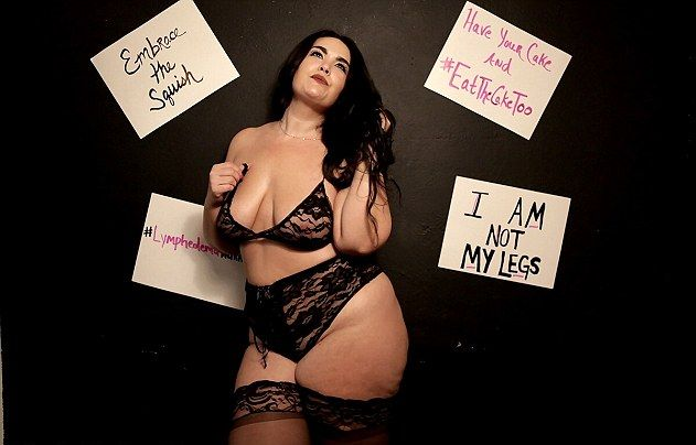 Женщина с опухшими ногами в сексуальном нижнем белье стала сенсацией Instagram