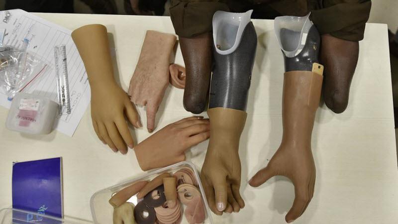 3D-печать протезов приходит в Индию