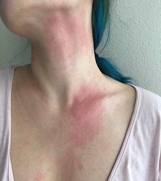 Девушка с редчайшей аллергией на воду