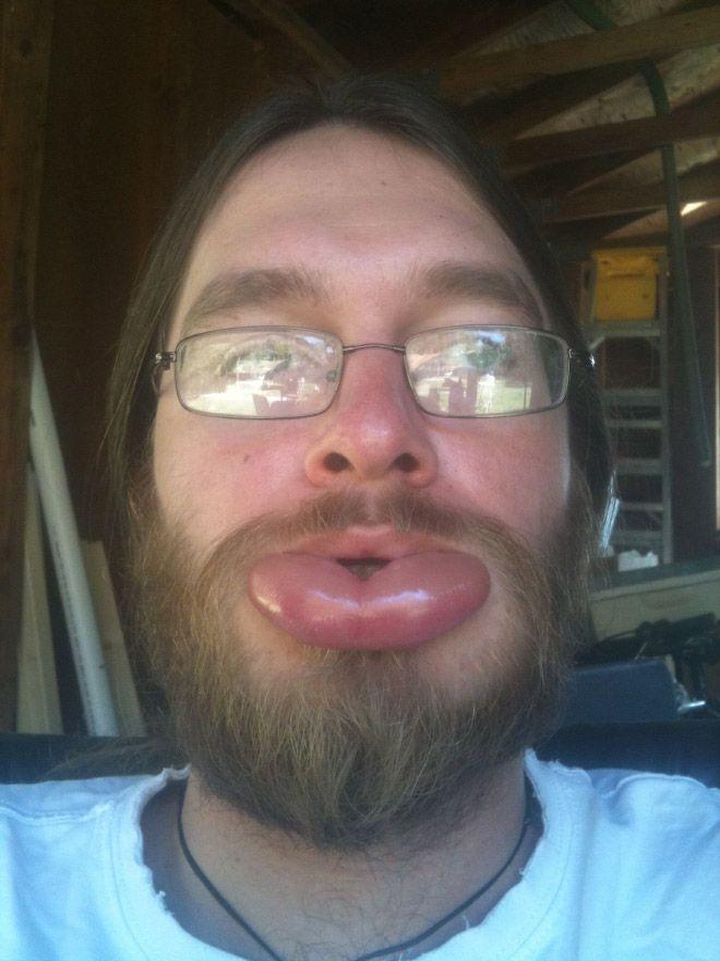 Пчелиные укусы - естественная альтернатива увеличению губ