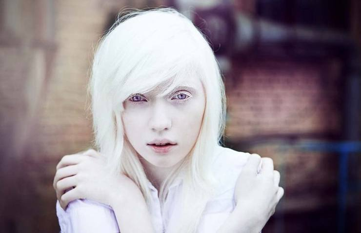 Interesting facts about albinos