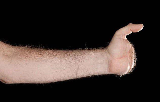 Инвалиду пересадили две руки донора