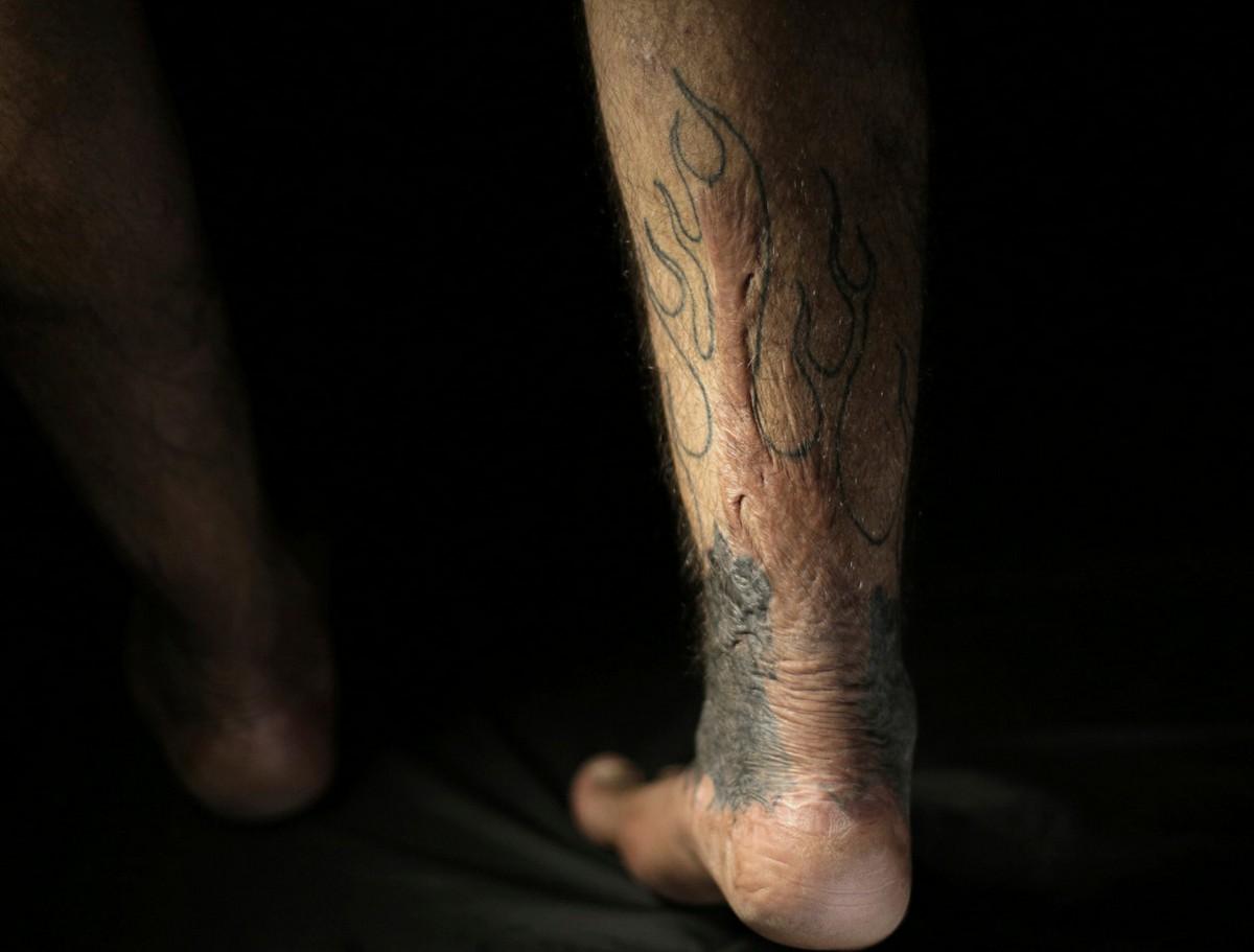Иракцы делают татуировки, чтобы скрыть шрамы войны