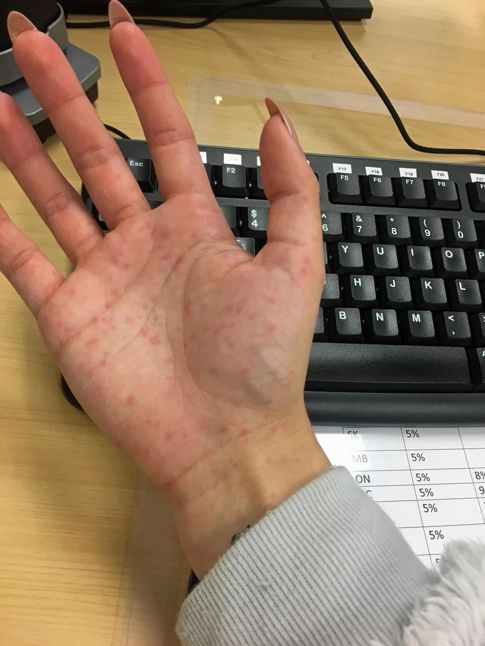 У канадки аллергия на зиму и она боится выйти на улицу