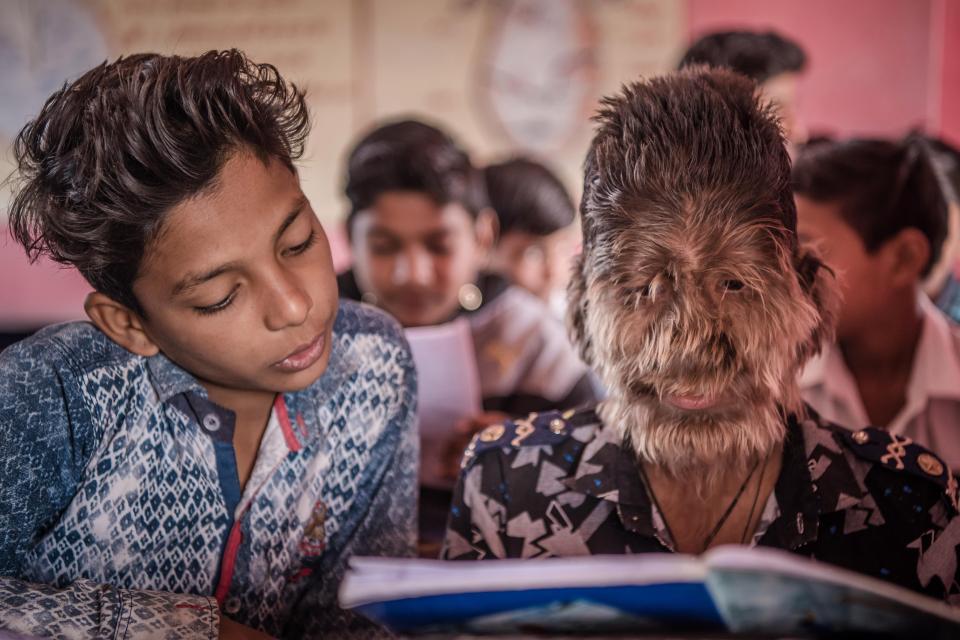 13-летний индийский мальчик с синдромом оборотня