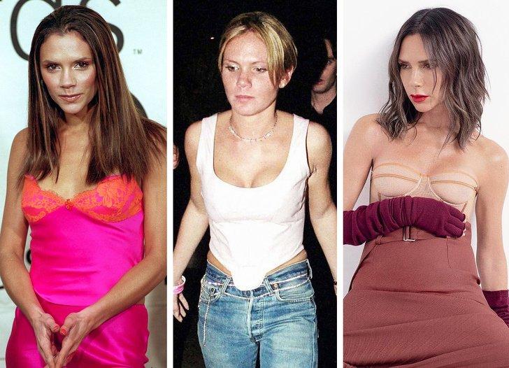 19 женщин-знаменитостей, которые делали пластику