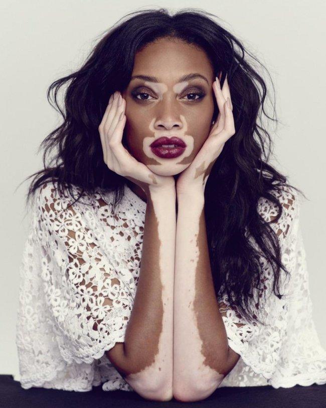 10 необычных моделей, изменивших представления о красоте