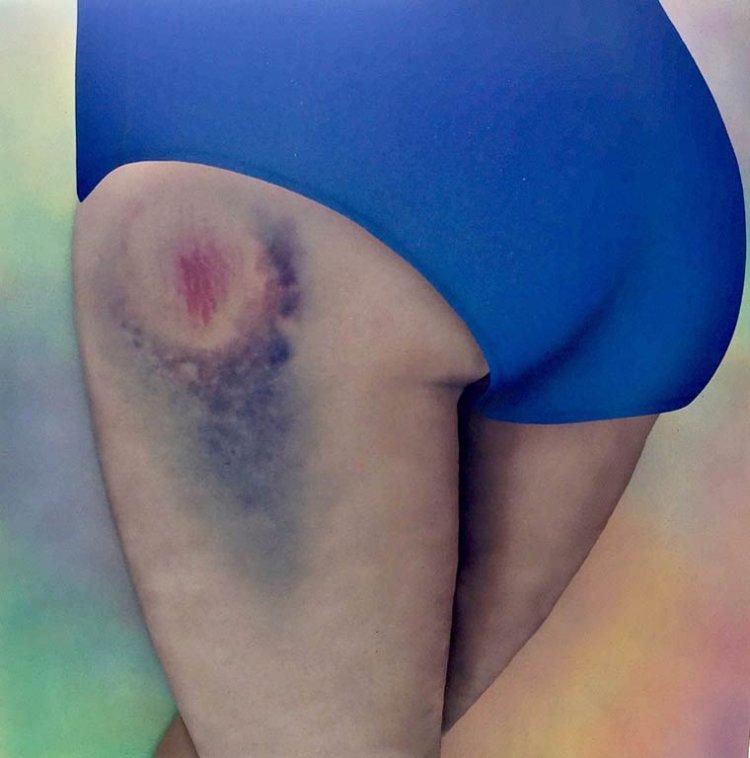 Синяки на заднице стали произведениями искусства