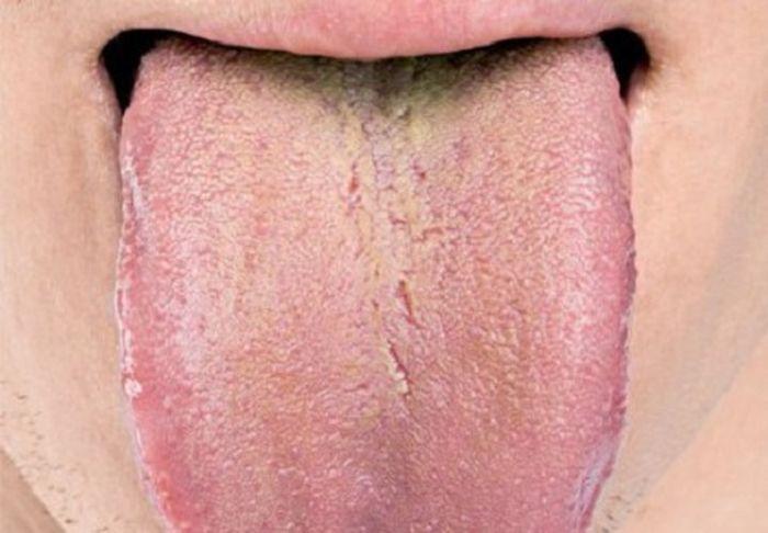 Язык — зеркало организма