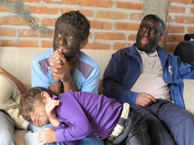 Самая волосатая семья в мире