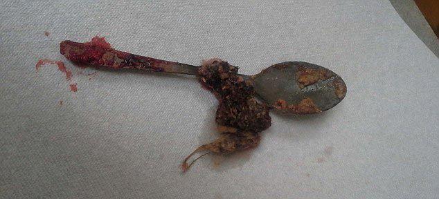 Инородные предметы, вытащенные из желудков домашних питомцев