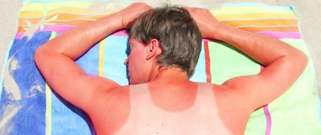 Почему солнечные ожоги могут быть опасны