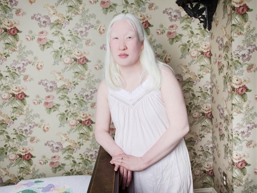 Люди-альбиносы в объективе Анджелины Д`Огаст