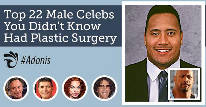 22 знаменитых мужчины, которые делали пластические операции