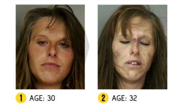 Результат налицо — как меняется внешность человека из-за наркотиков
