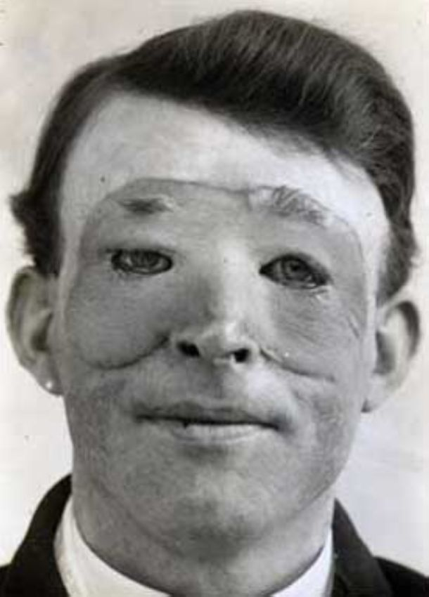 Довольные пациенты первых пластических хирургов