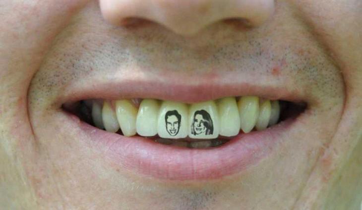 10 очень странных фактов о зубах