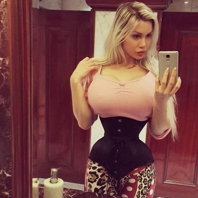 Шведка Пикси Фокс удалила 6 ребер ради талии в 40 см