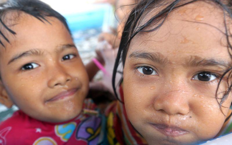 Сиамские сестры-близнецы из Таиланда не хотят, чтобы их разделяли