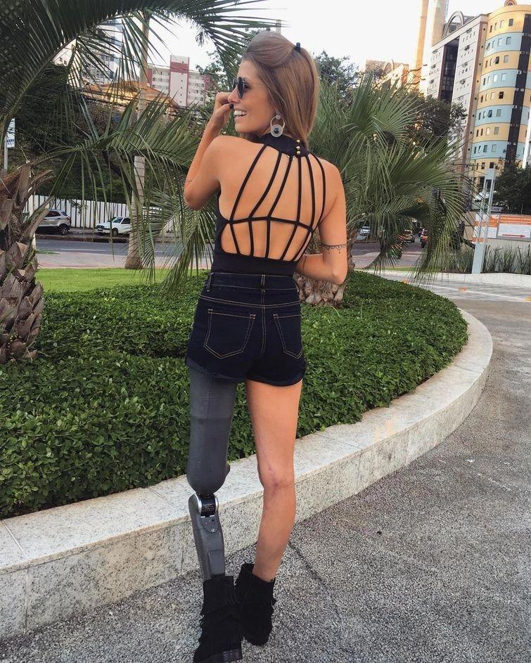 Бразильская модель, потерявшая ногу в аварии и вдохновляющая людей своей красотой