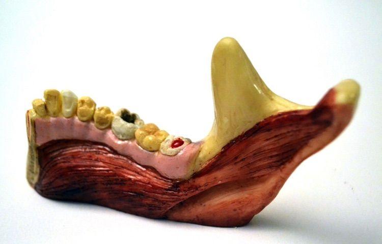 Аппетитные челюсти со следами серьезного заболевания десен