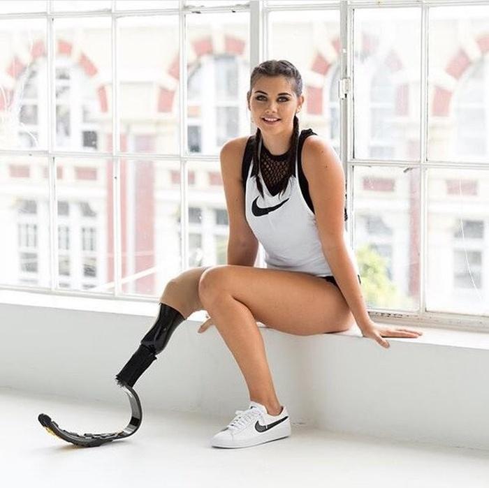 Девушка-инвалид Джесси Куинн готовится покорить модельный бизнес