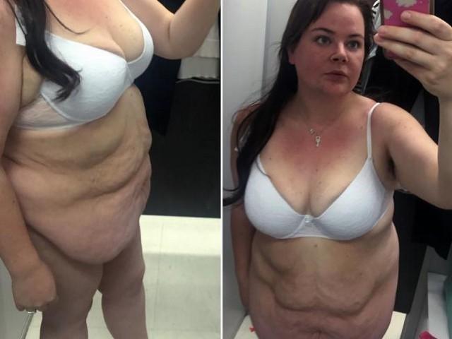 Пара из Австралии вместе похудела на 170 килограммов